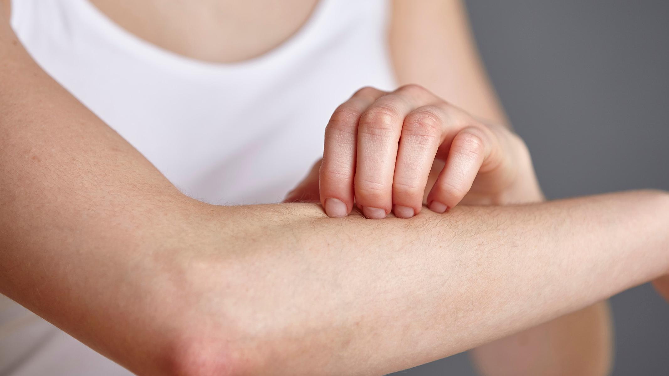 78-123833-contact-dermatitis-causes-symptoms-2