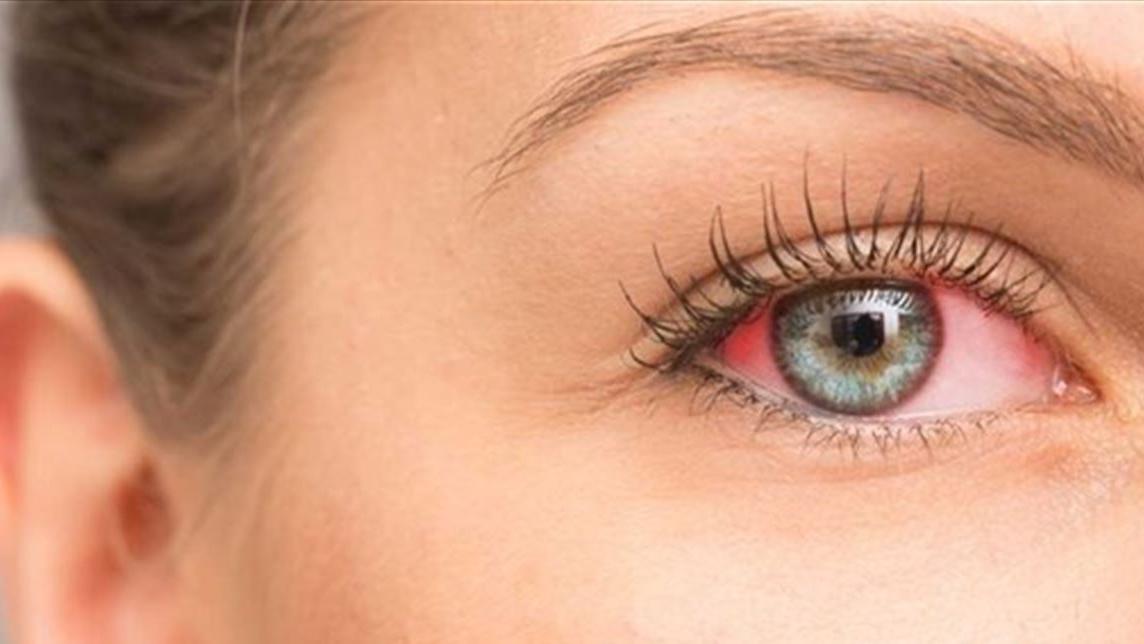 التهاب العين بسبب المكياج